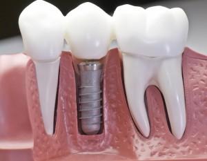 implantes-dentales-coronas