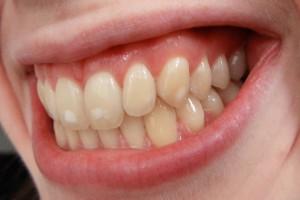 dientes-630x420