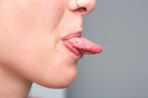 lengua-ampollas2
