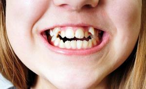 dientes-supernumerarios-2
