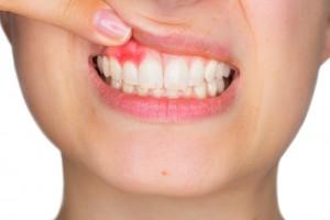 imagen-periodontitis